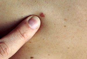skin cancer image